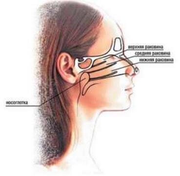 Лечение сфеноидита