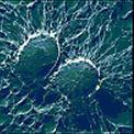 Бактериальный гайморит