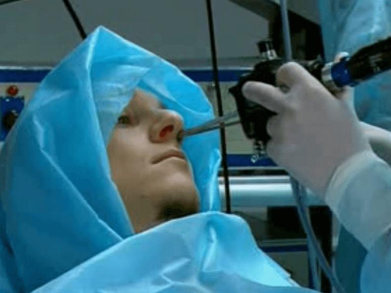 Лечение гайморита