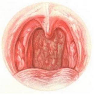 Симптомы хронического ринита