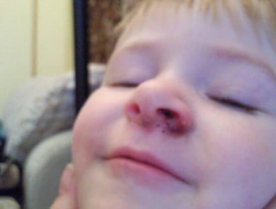 Герпес в носу у ребенка