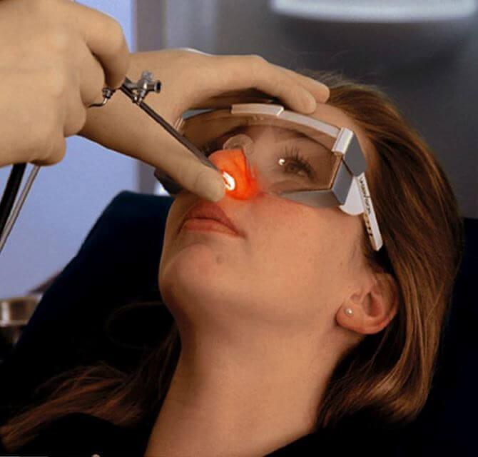 Лечение синехий носа