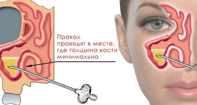 Уфа врач аллерголог дерматолог уфа