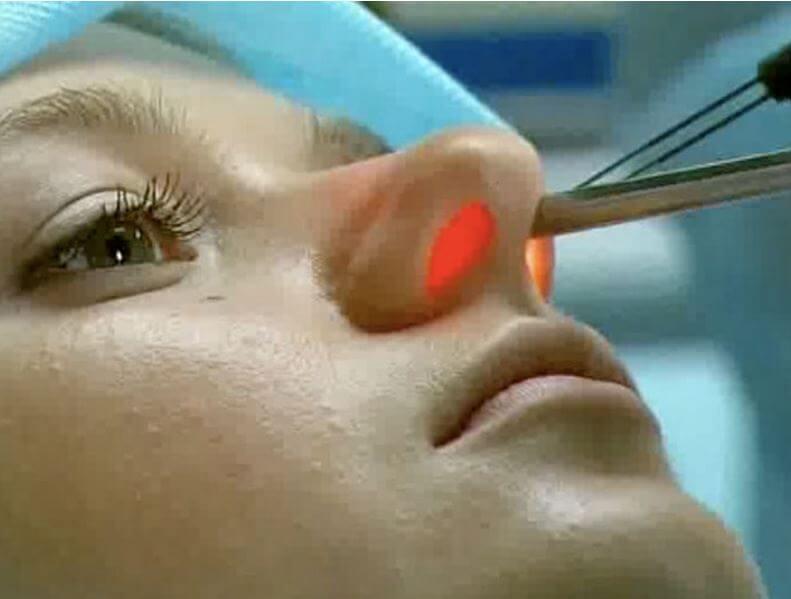 Лечение фурункула в носу