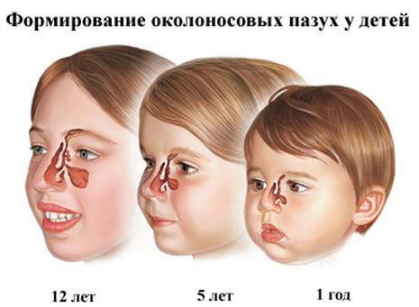 Гайморит у детей