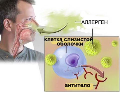 Аллергические синусопатии