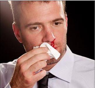 Кровотечение из носа причины лечение