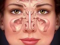 Хронический синусит