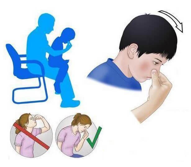 Первая помощь при кровотечении у ребенка