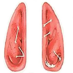Острый катаральный синусит