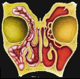 Острый верхнечелюстной синусит