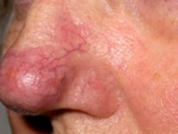 Купероз на носу