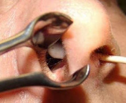 Перворация носовой перегородки